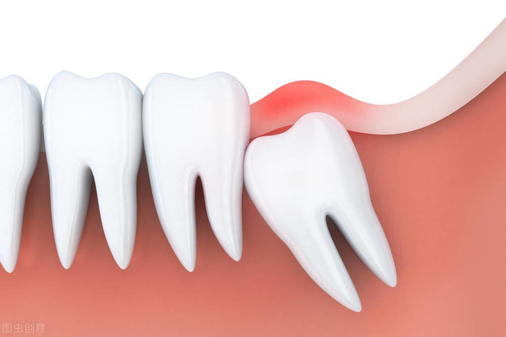 天天认真刷牙就不用洗牙?关于口腔保健的这3个误区,你中了吗?