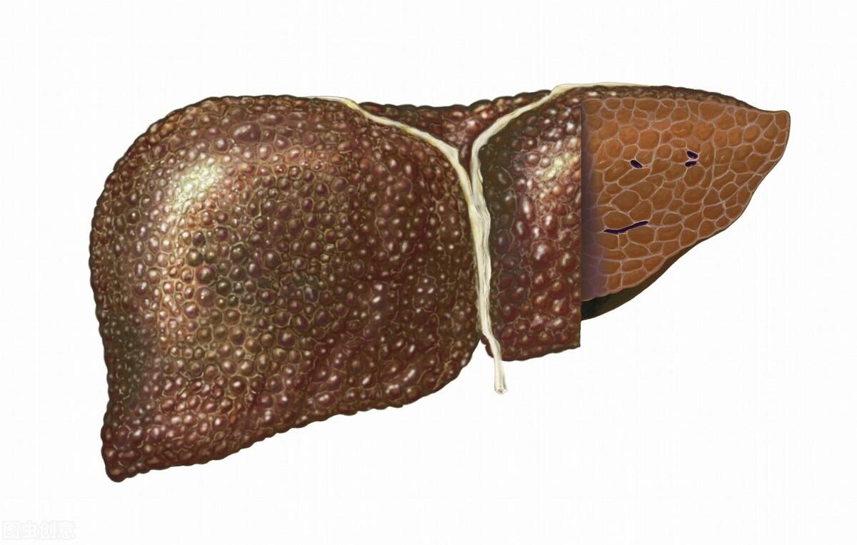 你是否存在这些症状?要当心肝脏正在硬化,已经产生腹水