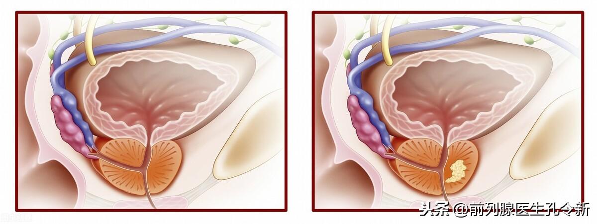 前列腺钙化要不要治?与其忐忑多疑拖长病程,不如早治早康复