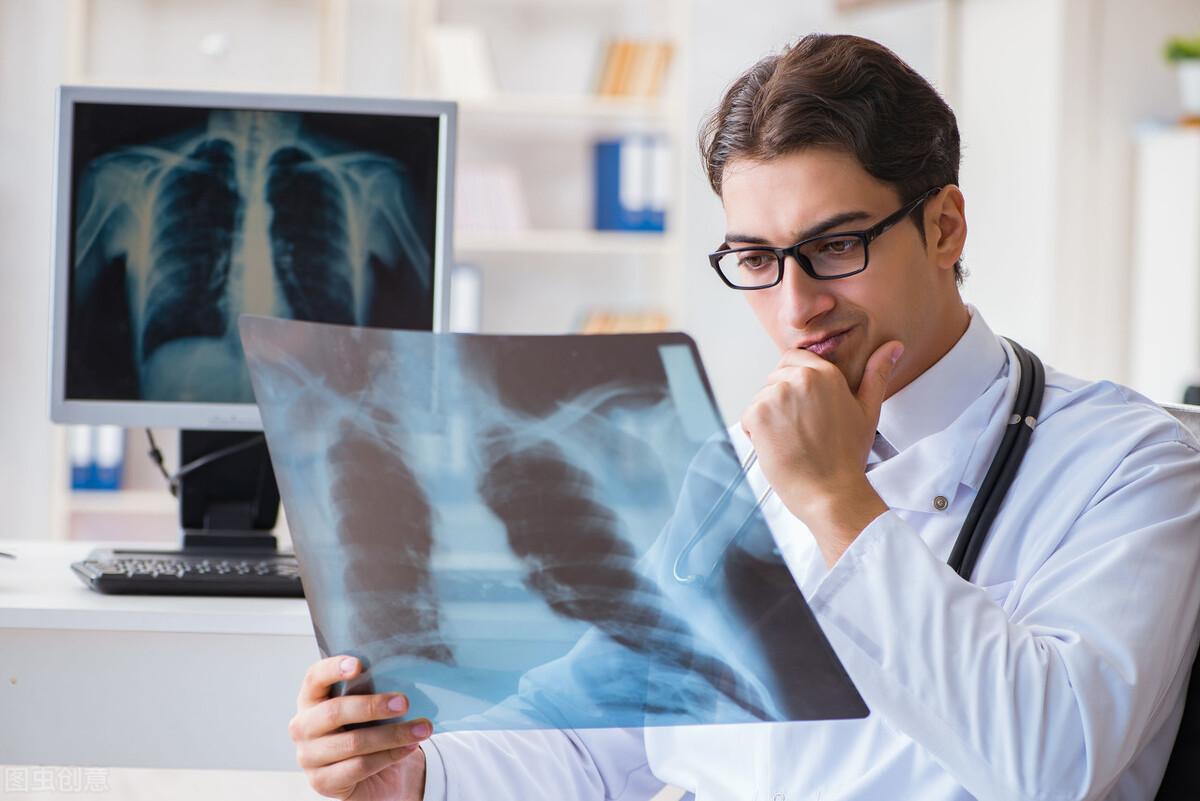 肺癌并不可怕,可怕的往往是肺癌导致的并发症