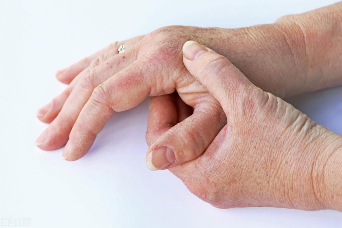 """银屑病不止是皮肤的病变,这些""""连锁反应""""你发现了吗"""