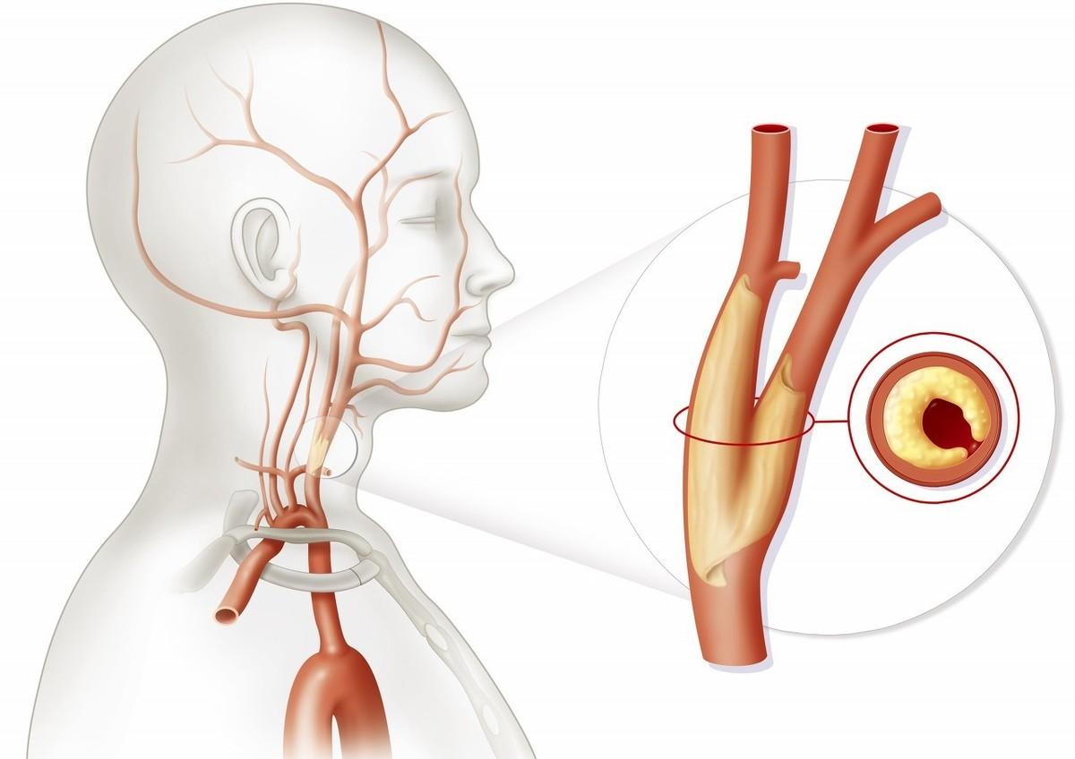 俗称血管硬化的克星,自然界的血管支架,脑梗死保护神,到底是啥