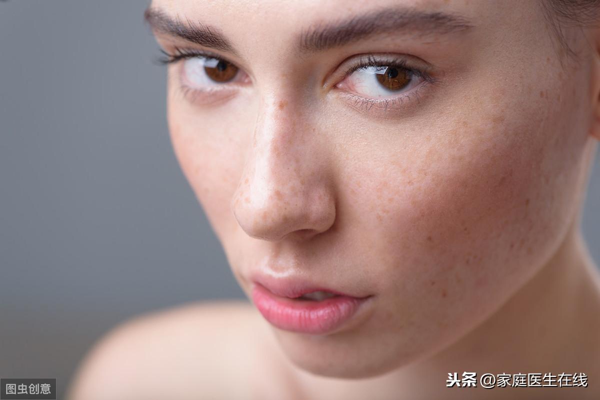 皮肤有红血丝怎么办?注意4点,或能改善皮肤