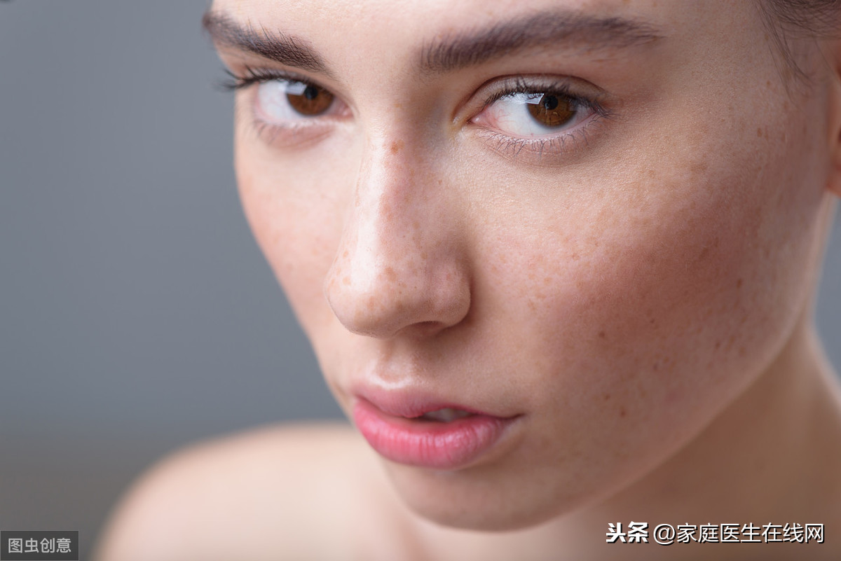 脸上有黄褐斑怎么办?用好3个方法,脸颊重新白白净净