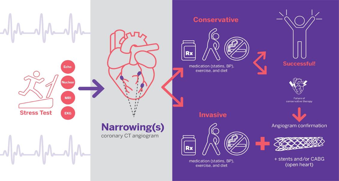 「实况」稳定性冠心病的最佳治疗策略,路在何方?