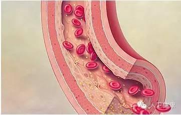 科普:动脉硬化就像水管生了锈