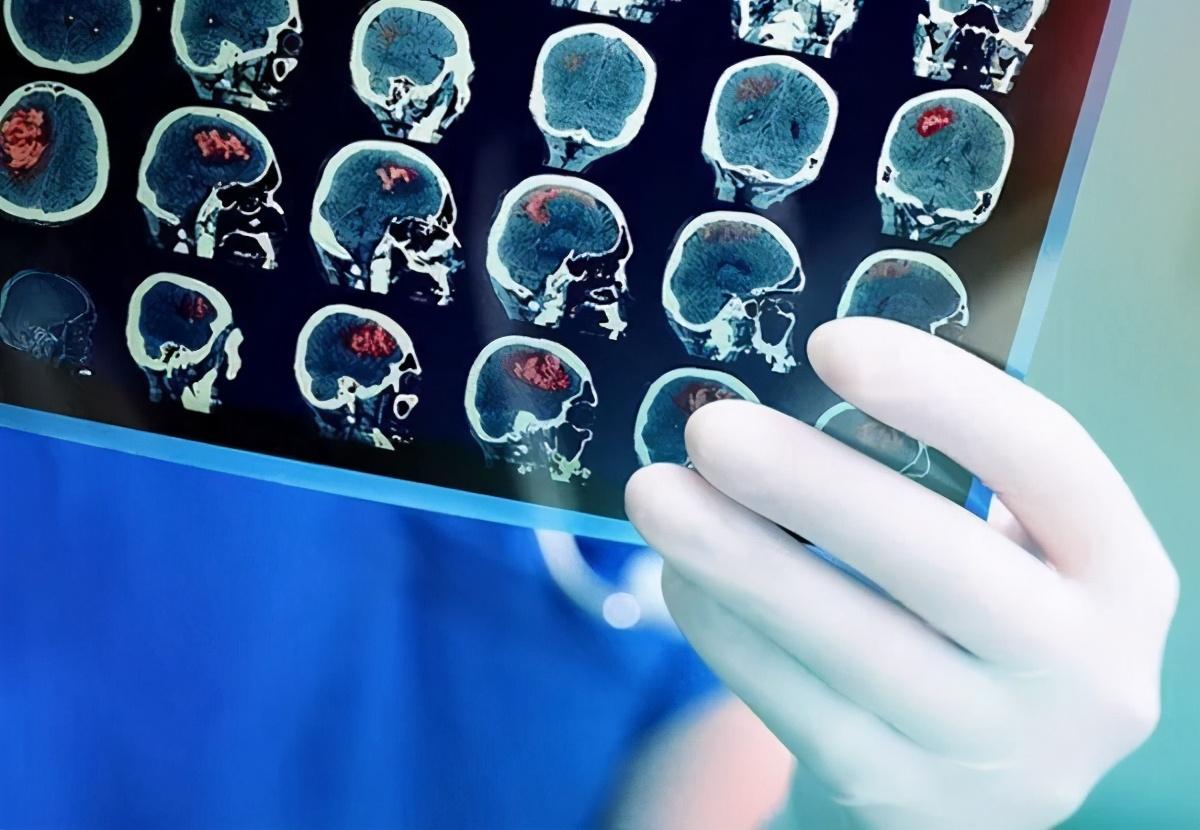 """""""脑癌之王""""恶性胶质瘤,有望迎来新型NK细胞疗法"""