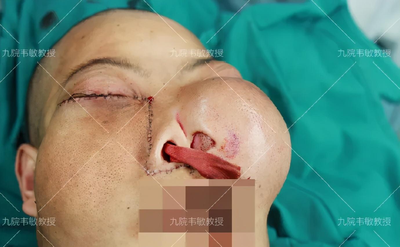 面部怪异似外星人的罕见病例手术诊治记录