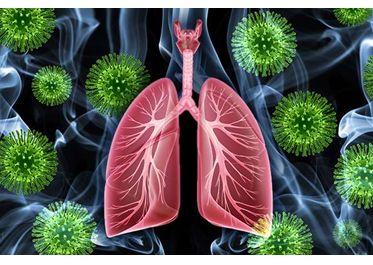 遭遇间质性肺炎:E7080治疗不明原发灶的鳞状细胞癌