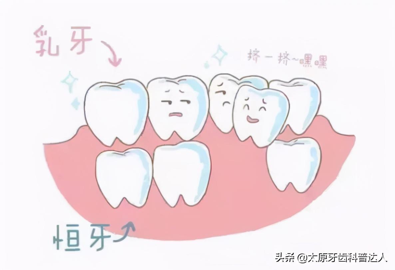 儿童换牙期间,需要家长注意7件事