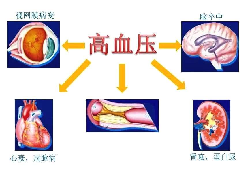 高血压3年没治就造成了心肾损害?发现高血压都该查些什么?
