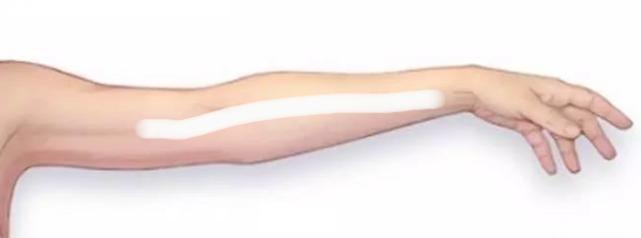 Theshy的手伤真的好严重!伤口长达20cm,从手腕一直到肘关节上侧