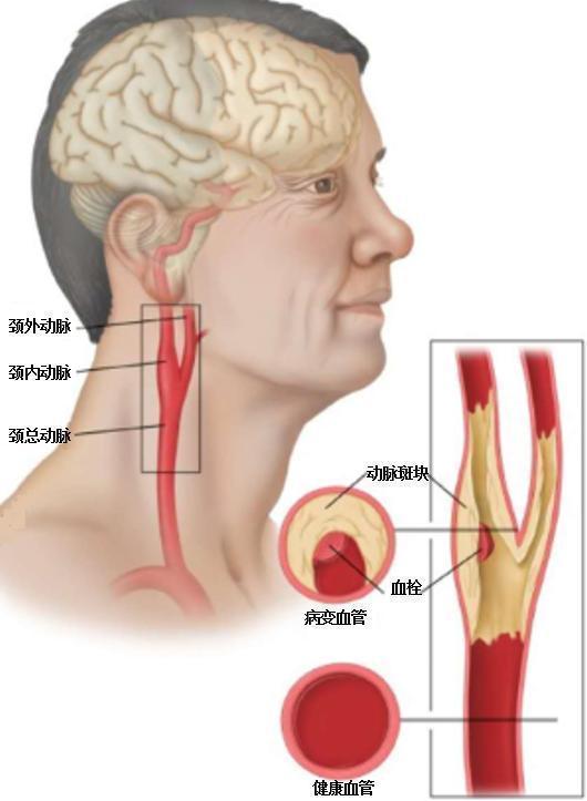 """体检发现""""颈动脉斑块""""?脑科医生为您揭示它的真面目和危害"""