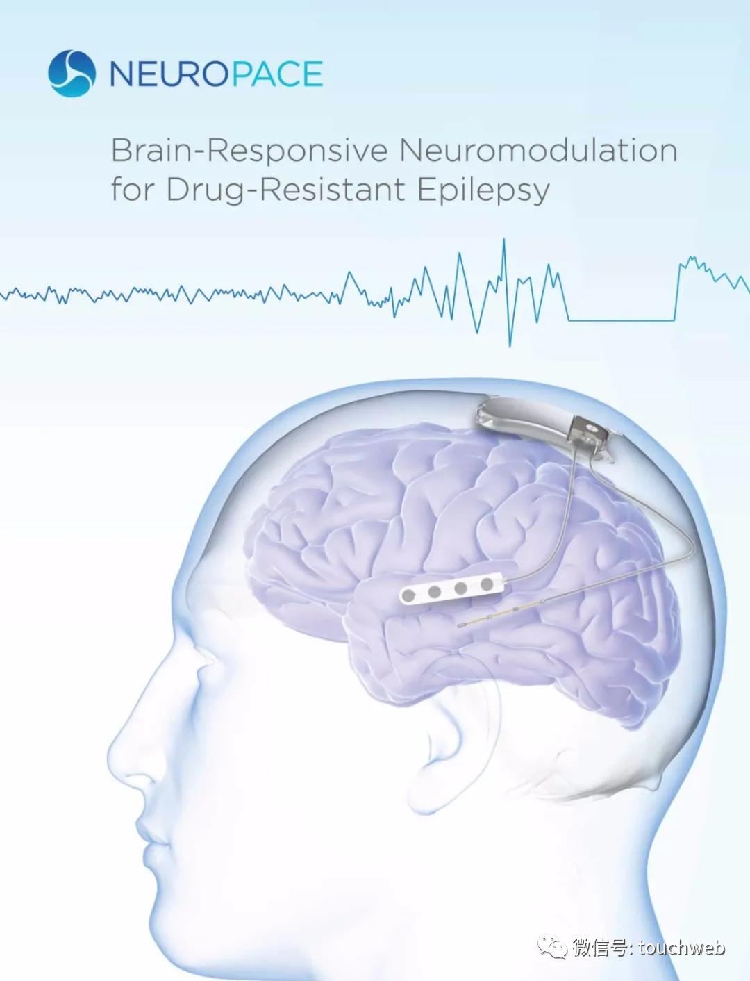 脑神经治疗企业NeuroPace上市:上涨47% 市值5.6亿美元