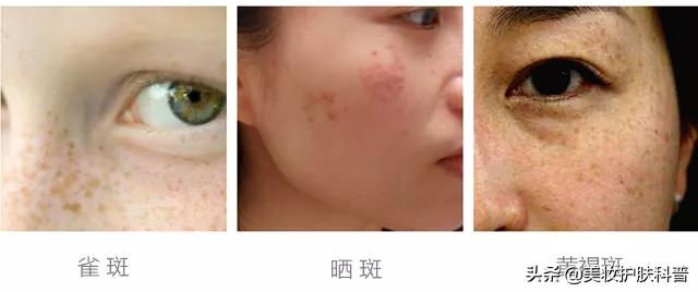 三月不防晒,五月斑上来,如何预防和治疗日晒斑 皮肤保养 第6张