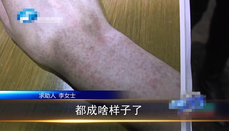 女子在郑州集美整形医院隆胸后假体移位、无知觉,协商赔十万不兑现?