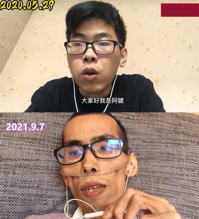 年輕小伙患癌300多天,骨瘦如柴宛如60歲老人:給家人留了爛攤子