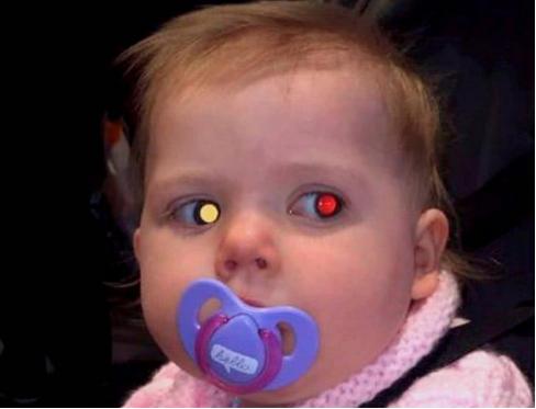 5岁娃近视1000度!罪魁祸首,不是手机,是「远视储备」