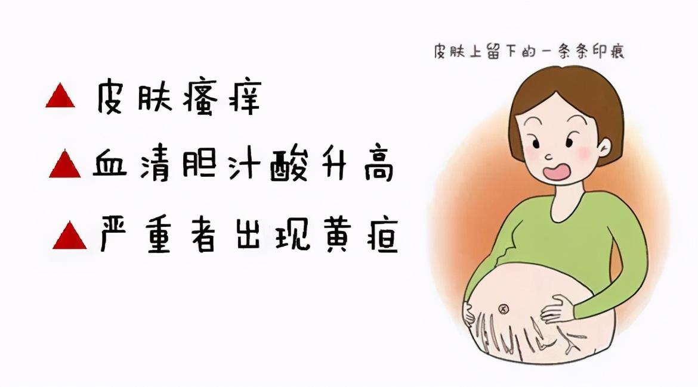妊娠期皮肤瘙痒,原来肝内胆汁淤积症在作怪