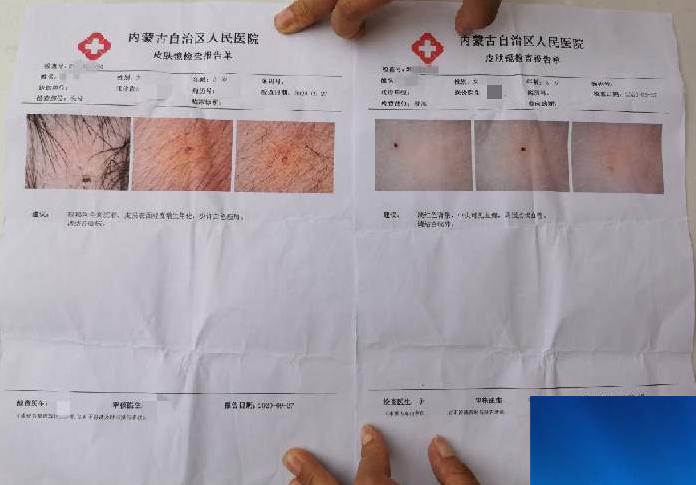 事发内蒙古:多名幼儿头部、腿部发现针眼,已逮捕3名教师
