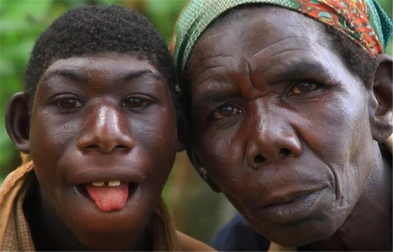 """非洲男孩因长相酷似""""猿类"""",遭村民戏弄,被逼爬树、逃跑"""