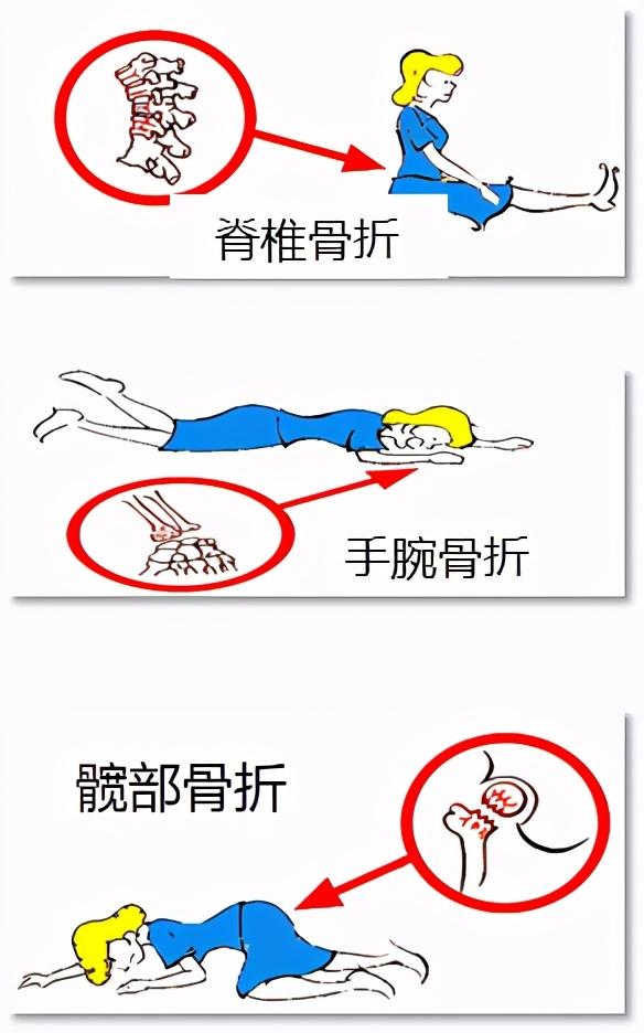 当脊柱遇上<!--HAODF:8:guzhishusong-->骨质疏松<!--HAODF:/8:guzhishusong-->(系列科普知识四:<!--HAODF:8:guzhishusong-->骨质疏松<!--HAODF:/8:guzhishusong--><!--HAODF:8:guzhe-->骨折<!--HAODF:/8:guzhe-->的常见部位)