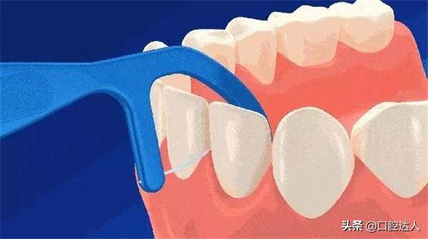 牙线到底要不要用?牙医告诉你使用牙线的正确姿势