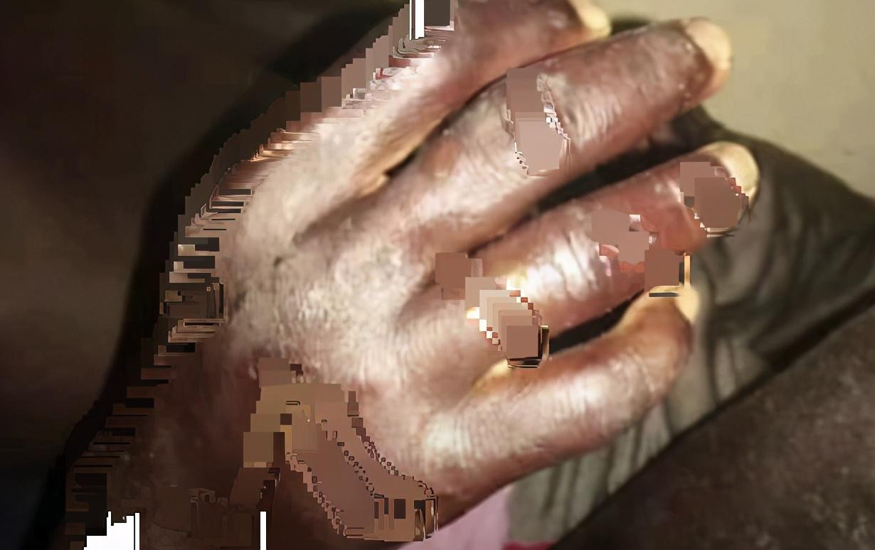 突发!非洲百名渔民感染神秘皮肤病,体温升高,脸部长满痘痘