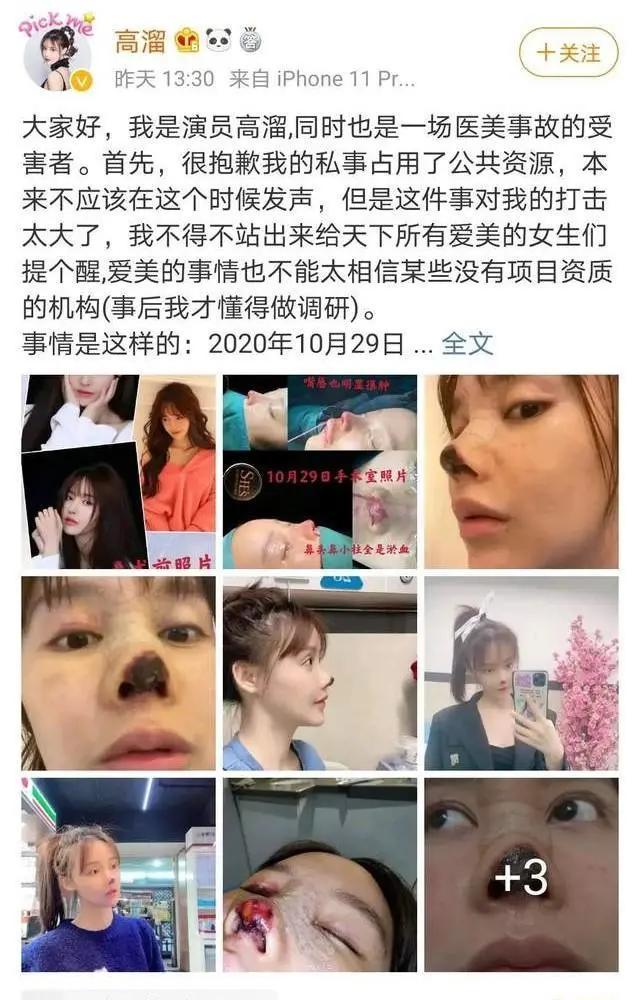 女演员自曝整形失败,涉事医美机构一年内被罚5次