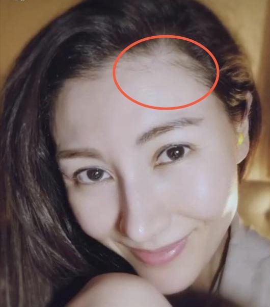 最美港姐李嘉欣晒照,皮肤白皙无皱纹,却暴露发际线上移要变秃?