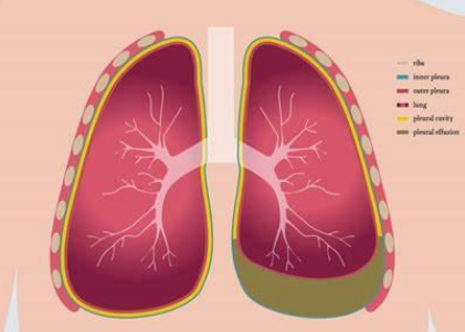 胸腔积液反复出现怎么办?抽液可以治疗胸水反复吗?
