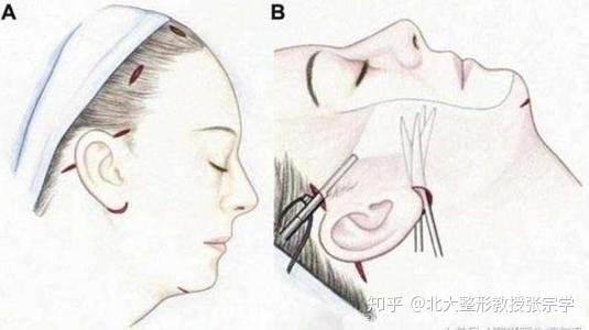 面部提升哪种方法最好?有0风险的吗?| 北京大学张宗学