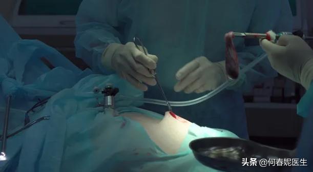 带你了解如何做腹腔镜下输卵管切开取胚术?