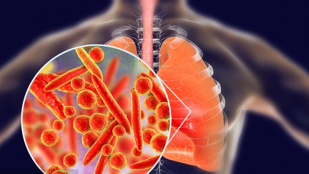 肺癌死亡率为什么居高不下?多半是由于并发症导致的