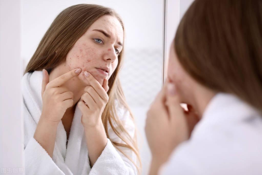 """总是长痘不只是皮肤问题,这4个位置长痘,或是疾病""""警示信号"""""""