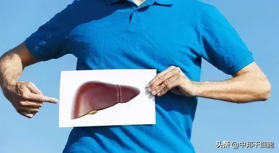 干细胞疗法为乙肝肝硬化治疗提供新方法