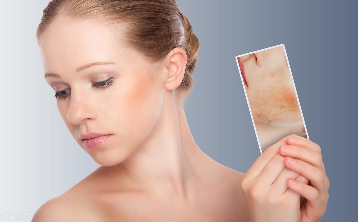 你是敏感肌吗?你知道敏感肌的美白方法吗?