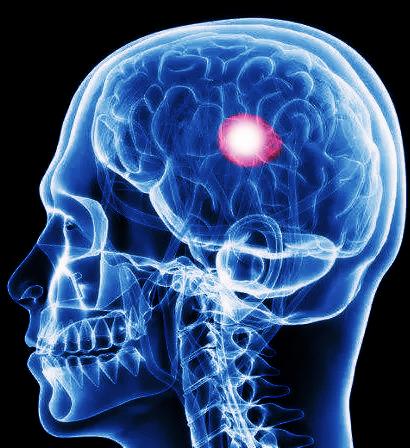 这三种脑膜瘤患者可以考虑不做手术、带瘤生存!快看有没有你