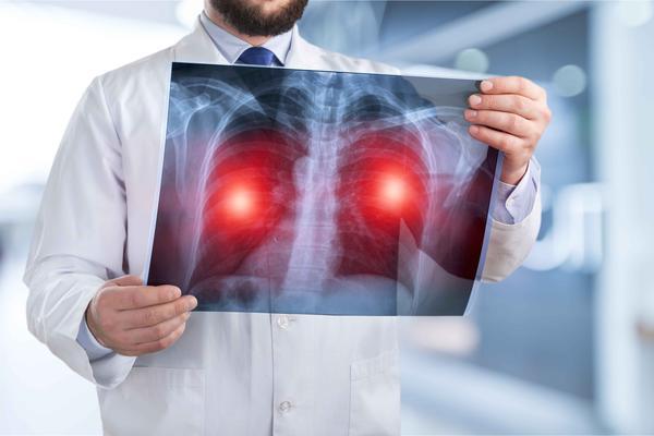 """40岁之后,身体若出现4种明显""""变化"""",最好查一下肺CT"""