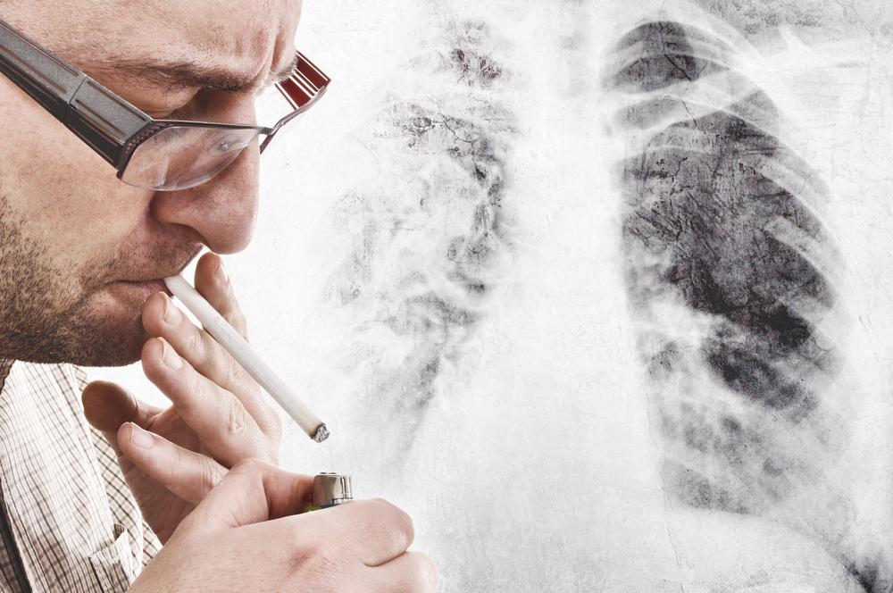 戒烟反而一身病?戒烟后心梗、脑梗了?60岁后真的不能戒烟了?