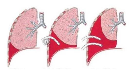 如何发现患有胸腔积液?又该如何治疗呢?