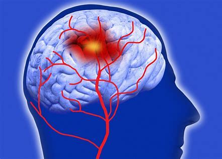 50岁以后脑出血发病率会大大提升,应该如何预防?医生为您讲清楚