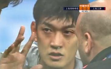 新闻晨报:颜骏凌眼伤严重需手术,或赛季报销