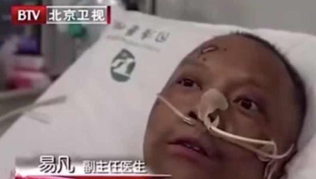 """武汉曾患新冠的""""黑脸""""医生,白回来了"""