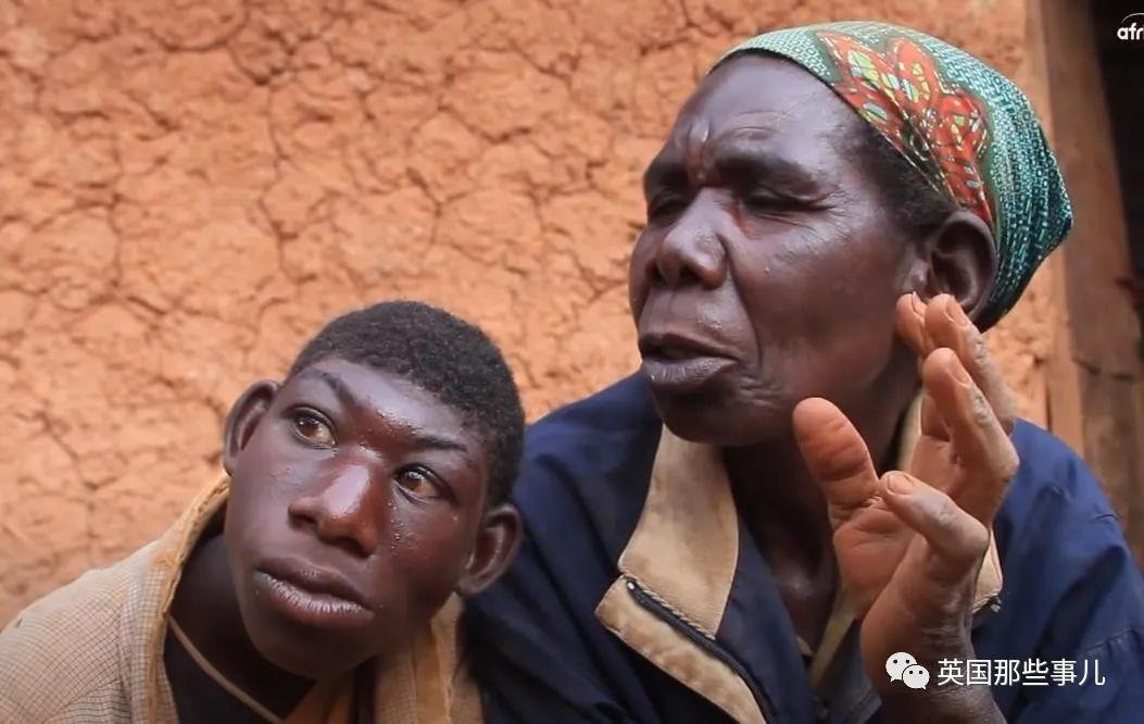 """非洲男孩长相返祖只吃水果,被村民当""""猴子""""霸凌,让人心碎…"""
