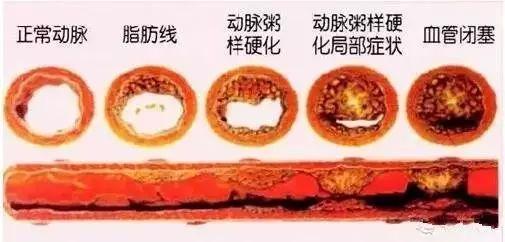 这根血管连通大脑最容易堵!很多人半身不遂后才发现