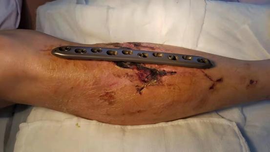 骨折 開放 開放骨折とは?症状や治療法、4つの応急処置について!