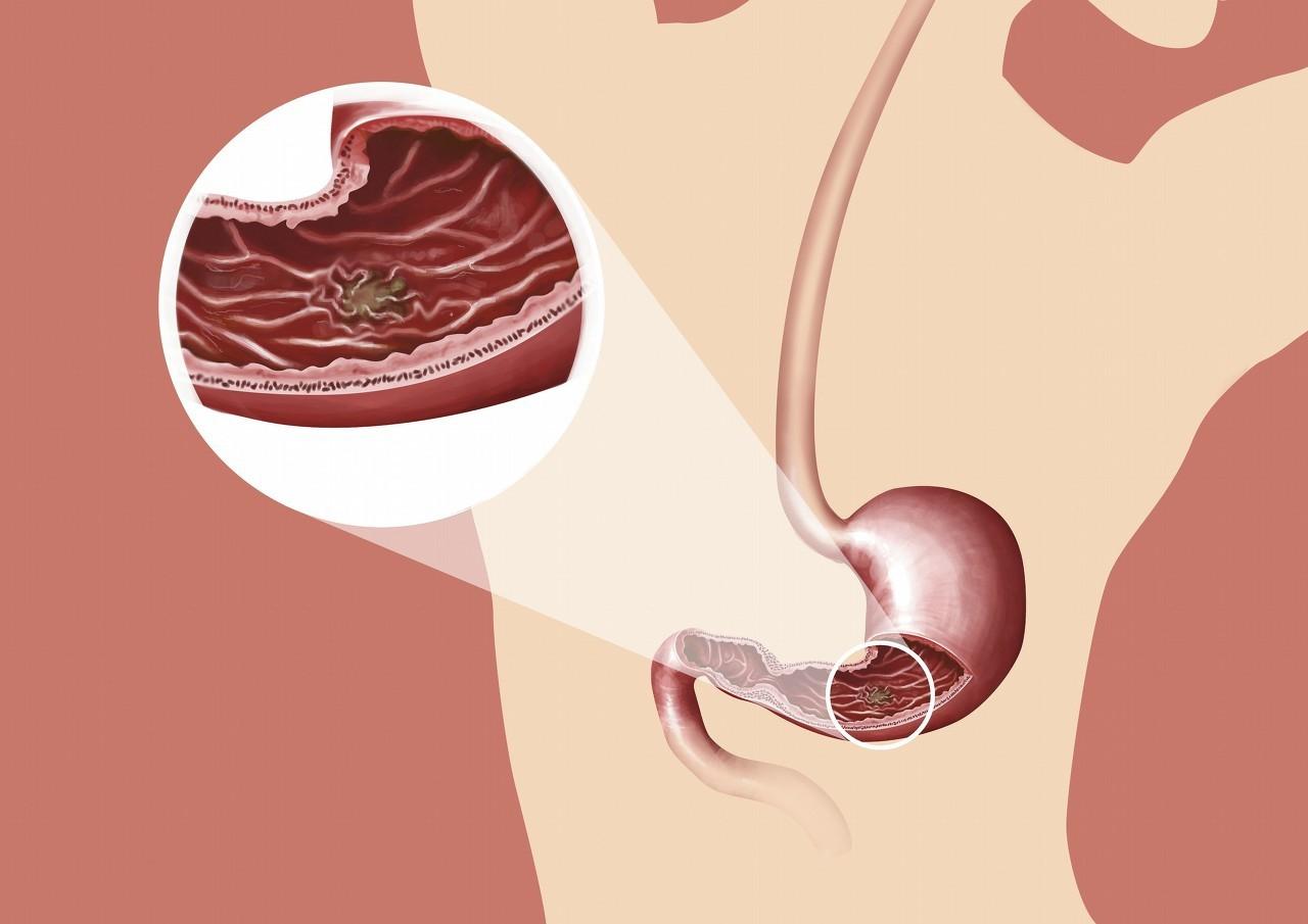 患了胃溃疡严重吗 胃溃疡反复发作怎么办 医生说出了四大关键