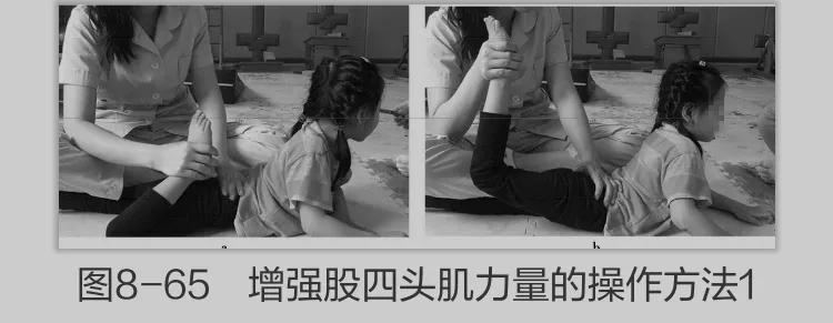 为爱行儿童康复中心增强脑瘫儿童股四头肌力量的运动治疗