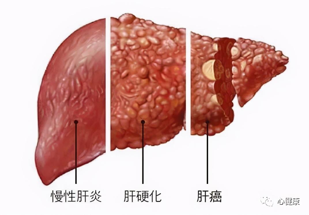 吴孟达肝癌去世:关于肝癌,这些知识你都要知道